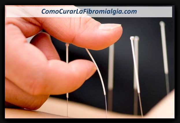 Acupuntura para Fibromialgia